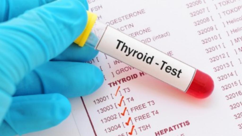 Full Thyroid Panel